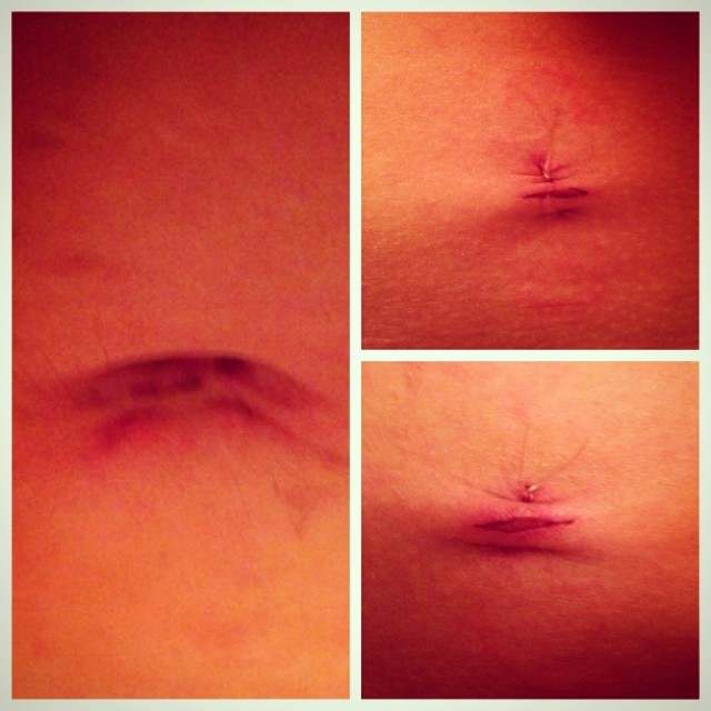 endometriosis laparoscopy scars