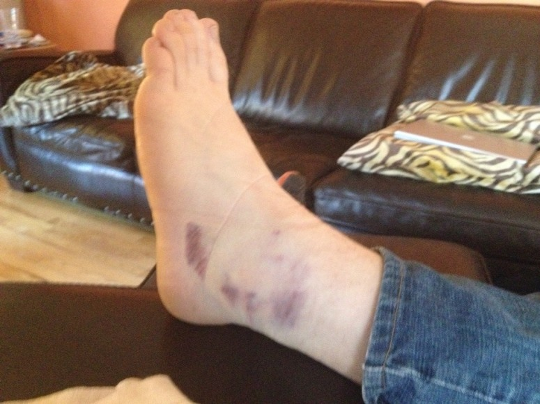 sprained ankle bruising