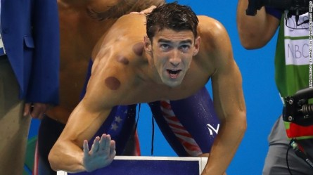 160809172558-michael-phelps-cupping-exlarge-169